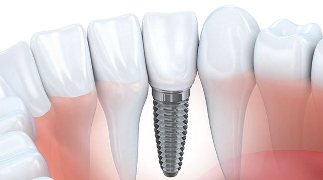 indicatii dupa implatul dentar